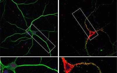 Treating Brain Diseases Now Possible